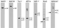 Proteomic analyses - figure 2